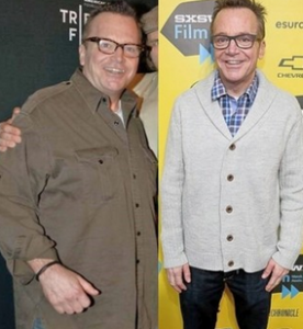 Tom Arnold Before and After