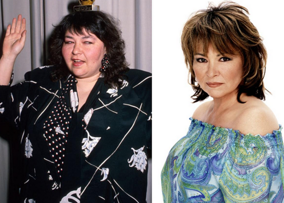 Rosanne Barr Weight Loss
