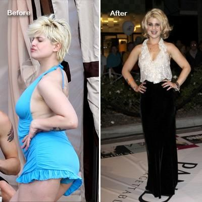 Kelly Osbourne Got Thin: How? Before and After Pics Here ...