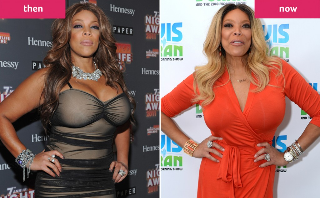 Wendy Williams And Her 50-Pound Weight Loss - PK Baseline