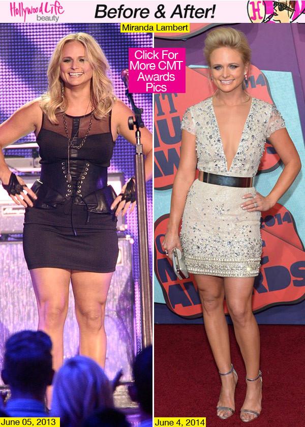 Miranda Lambert CMT Awards Before After