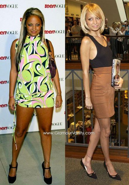Nicole Richie before and after weight loss