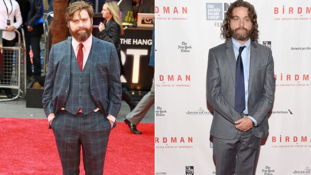 Zach Galifianakis Reveals Shocking Transformation